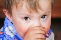 Close up of Boy With Downs-Syndrome Stock Photography