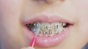 Close-up braces on the girl`s teeth. Teen girl cleaning and brushing teeth with clear metal braces using special brushing tools. Oral hygiene for braces stock video