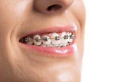 Close up of braces girls teeth Stock Photos