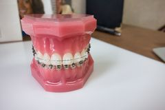 Dental braces model Stock Photography