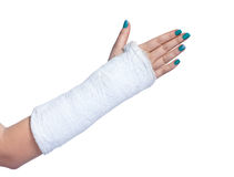 Close up of a broken arm Royalty Free Stock Image