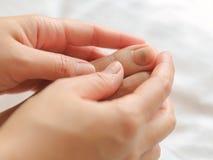 Woman Bruised toenail. Close up of Bruised toenail Royalty Free Stock Photography
