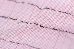 Close up of cardiogram used as background, medical theme.  royalty free stock photos