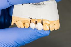 Close-up ceramic tooth crown on a plaster model of teeth in the dentist`s hand. The work of a dental technician royalty free stock photos