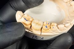 Close-up ceramic tooth crown on a plaster model of teeth in the dentist`s hand. The work of a dental technician stock images