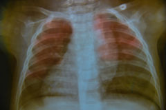 Close up chest child. X-ray medical science background royalty free stock image