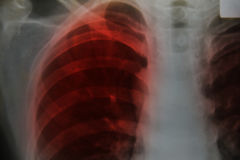 Close up chest x-ray Stock Images