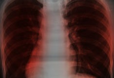 Close up chest x-ray Royalty Free Stock Photos