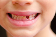 Close up child missing milk tooth Royalty Free Stock Photography