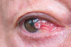 Close up of the conjunctiva squamous cell carcinoma. Royalty Free Stock Photos
