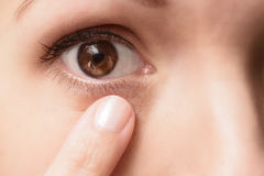 Close up of a contact lens in an eye Royalty Free Stock Photos