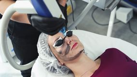 Close-up cosmetologist makes carbon peeling procedure, laser flash cleans skin of patient face