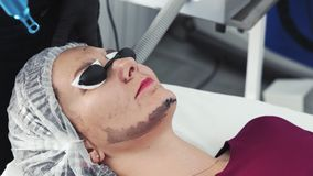 Close-up cosmetologist makes carbon peeling procedure, laser flash cleans skin of patient face. Close-up cosmetologist makes carbon peeling procedure on face of stock video footage