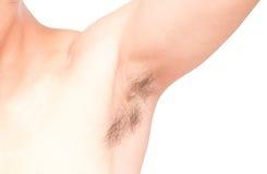 Close up da axila e do cabelo do homem no fundo branco, cuidados médicos a Fotos de Stock Royalty Free