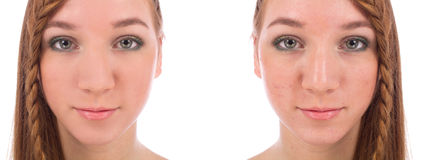 Close-up da cara do adolescente com e sem a acne Imagem de Stock Royalty Free