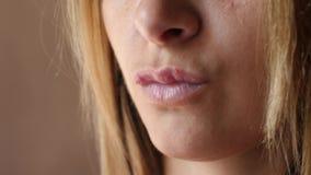 Close up da herpes das úlceras do bordo do ` s das mulheres Os bordos bonitos foram cobertos com os sores frios A menina lambe se filme