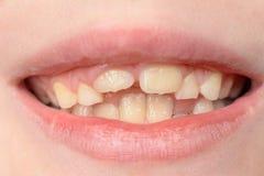 Close-up de um menino pequeno com sorriso curvado dos dentes fotografia de stock