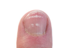 Close up de uma unha com leukonychia imagem de stock