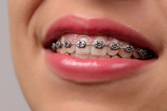 Close-up dental Braces on Teeth. Stock Photography
