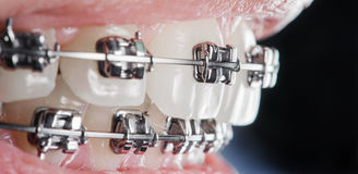 Close-up dental braces on teeth. Orthodontic Treatment Royalty Free Stock Images