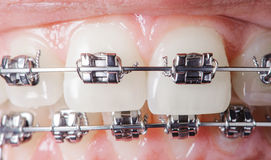 Close-up dental braces on teeth. Orthodontic Treatment Stock Image