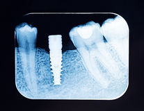 Close up Dental X Ray screw implant Stock Images