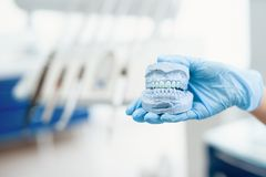Close up. A dentist holds a prosthetic jaw with teeth in his hand. Close up. The dentist holds a mock jaw with dentures in his hands stock images