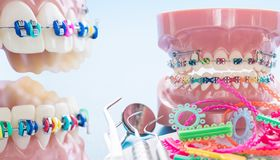 Close up dentist tools and orthodontic model. Close up dentist tools and orthodontic model  - demonstration teeth model of varities of orthodontic bracket or royalty free stock photo
