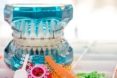 Close up dentist tools and orthodontic model. Close up dentist tools and orthodontic model  - demonstration teeth model of varities of orthodontic bracket or stock images