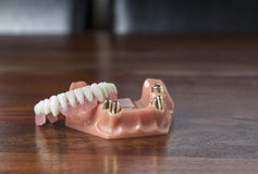 Close up of dentures with gold teeth. Close up view of a single dentures model with a set of gold teeth inside sitting on wooden table Stock Images