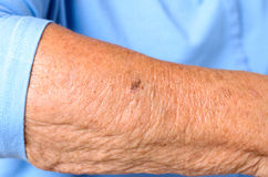 Close up detail of the forearm of an elderly woman Royalty Free Stock Photography