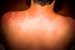 Close up detail of a very bad sunburn back mans. Close up detail of sunburn of back mans skin Stock Photo