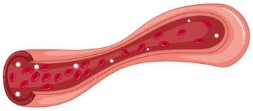 Close up diagram of blood clot vector illustration