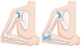 Close up diagram of human elbow joints Stock Image