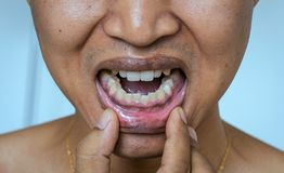 Close up of diseased black gum,Yellow teeth of man patient causes of smoking,Concept oral health. Close up of diseased black gum,Yellow teeth of asian man royalty free stock image