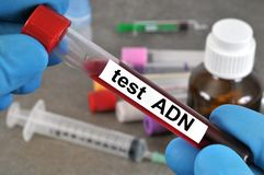Dna search blood test in close-up stock images