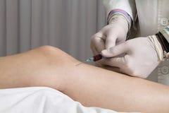 Close up do doutor que injeta o plasma dos ricos da plaqueta Imagem de Stock