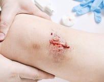 Close-up do gash ensanguentado no joelho Tratamento sem fôlego com antisséptico fotografia de stock royalty free