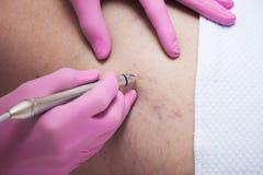 Close up do procedimento capilar do removel do laser na clínica médica fotos de stock