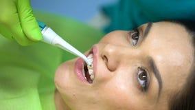 Close up do procedimento dental do tratamento no incisivo central, cura do dente lascado video estoque