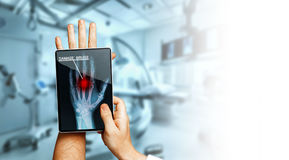 Doctor With Digital Tablet Scans Patient Hand, Modern X-Ray Technology In Medicine And Healthcare Concept. Close-up, a doctor with a digital tablet in his hand stock photo