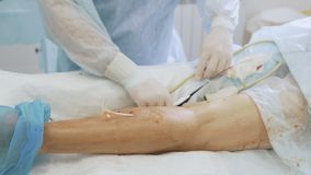 Close up doctor does an ultrasound on patient leg before sclerotherapy procedure in operation room. Hands of surgeon in sterile gloves with medical equipment stock video footage