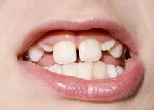 Close up dos dentes do menino novo Imagem de Stock