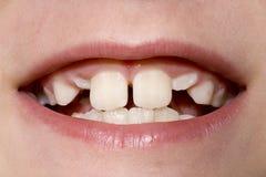 Close up dos dentes do menino novo Fotos de Stock Royalty Free
