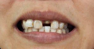 Close up dos dentes ruins imagens de stock royalty free