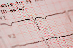 Close up of ecg graph Royalty Free Stock Photo