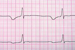 Close-up of ecg graph Stock Photos