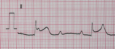 A close up ECG print out Royalty Free Stock Photo