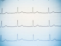 Close up of an electrocardiogram. Royalty Free Stock Images