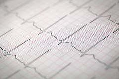 Close-up of an electrocardiogram. Medical and healthcare concept royalty free stock images